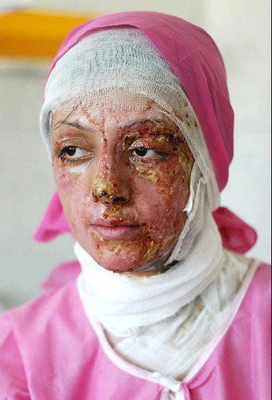 اسید پاشی روی دختران